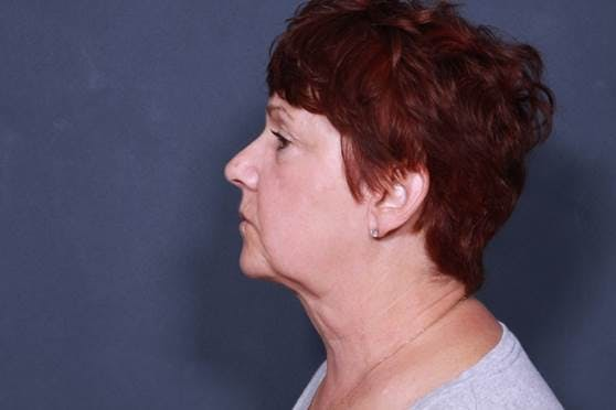 Facelift Gallery - Patient 42751455 - Image 5