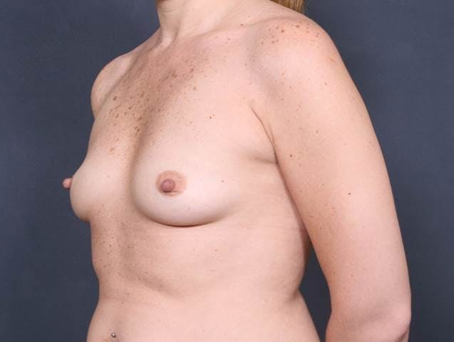Breast Augmentation Gallery - Patient 42751456 - Image 3