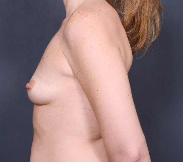 Breast Augmentation Gallery - Patient 42751456 - Image 5