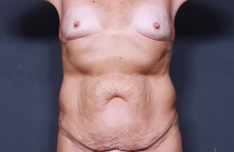 Tummy Tuck Gallery - Patient 42751461 - Image 1