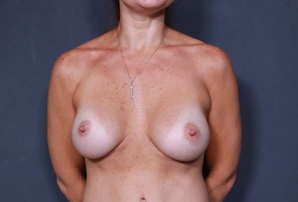 Breast Augmentation Gallery - Patient 42751456 - Image 2