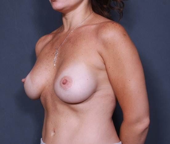 Breast Augmentation Gallery - Patient 42751456 - Image 4