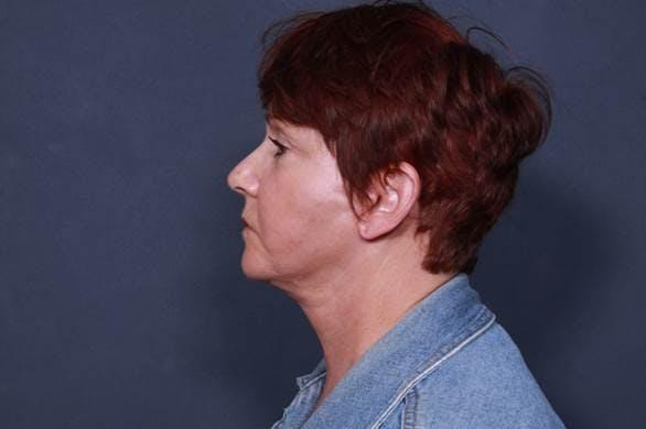 Facelift Gallery - Patient 42751455 - Image 6
