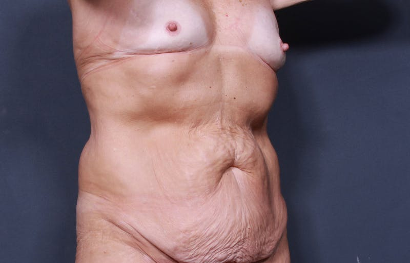 Tummy Tuck Gallery - Patient 42751461 - Image 3