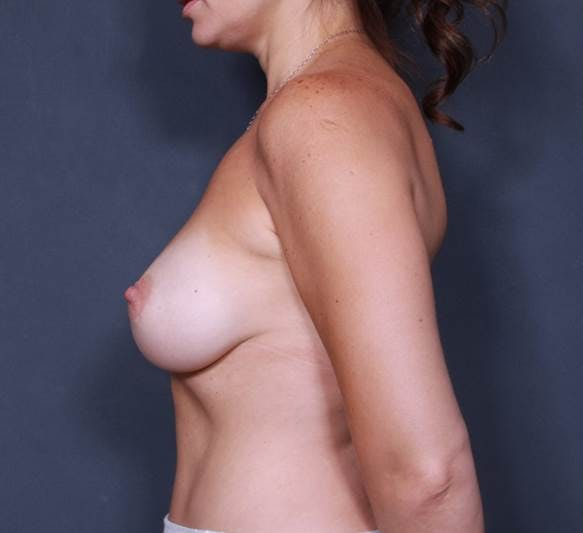 Breast Augmentation Gallery - Patient 42751456 - Image 6