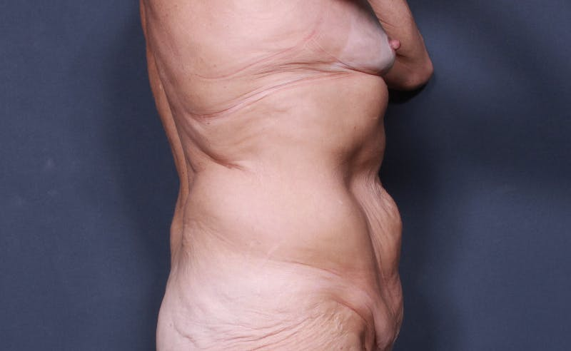 Tummy Tuck Gallery - Patient 42751461 - Image 5
