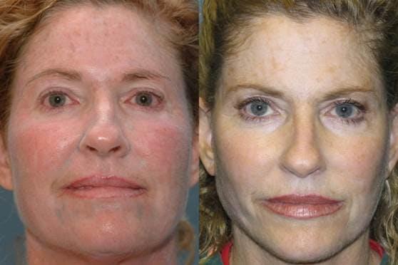 Facelift Gallery - Patient 42751457 - Image 1
