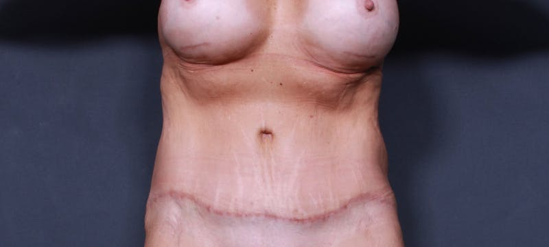 Tummy Tuck Gallery - Patient 42751461 - Image 2