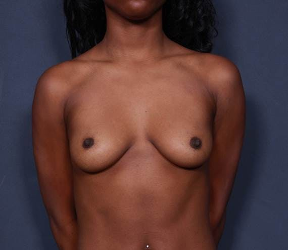 Breast Augmentation Gallery - Patient 42751465 - Image 1