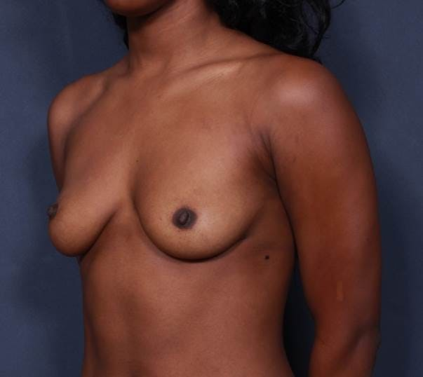 Breast Augmentation Gallery - Patient 42751465 - Image 3