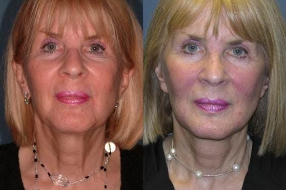 Facelift Gallery - Patient 42751460 - Image 1