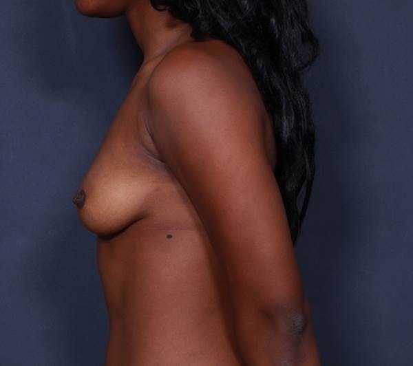 Breast Augmentation Gallery - Patient 42751465 - Image 5