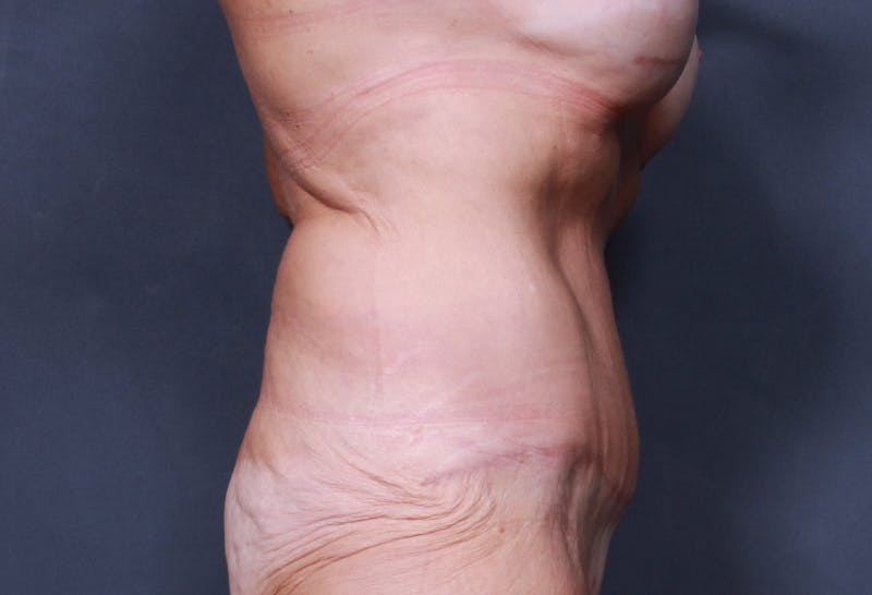 Tummy Tuck Gallery - Patient 42751461 - Image 6