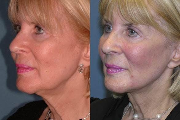 Facelift Gallery - Patient 42751460 - Image 2