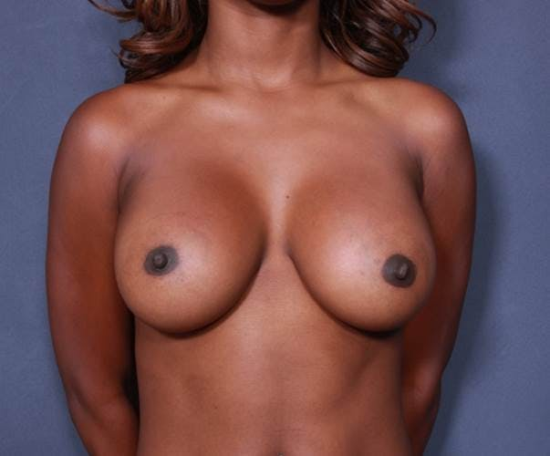 Breast Augmentation Gallery - Patient 42751465 - Image 2