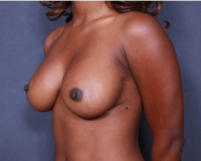 Breast Augmentation Gallery - Patient 42751465 - Image 4