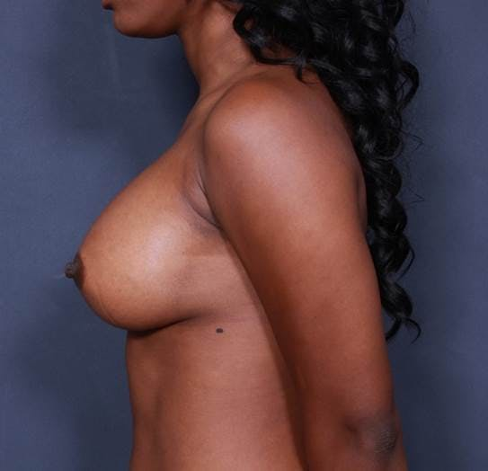 Breast Augmentation Gallery - Patient 42751465 - Image 6