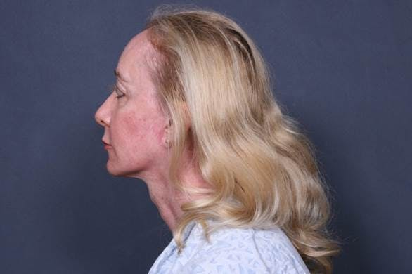 Facelift Gallery - Patient 42751466 - Image 4