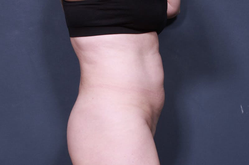 Tummy Tuck Gallery - Patient 42751471 - Image 5