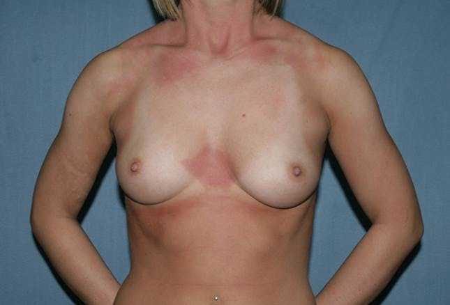 Breast Augmentation Gallery - Patient 42751473 - Image 1