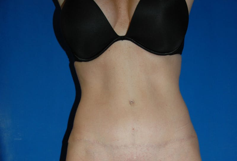 Tummy Tuck Gallery - Patient 42751471 - Image 2