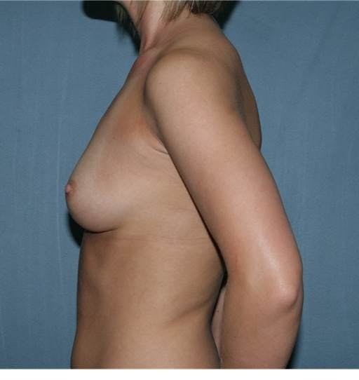 Breast Augmentation Gallery - Patient 42751473 - Image 5