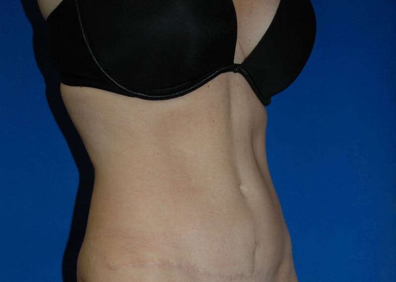Tummy Tuck Gallery - Patient 42751471 - Image 4