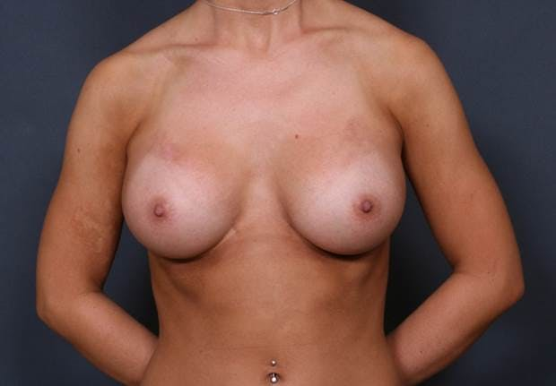 Breast Augmentation Gallery - Patient 42751473 - Image 2