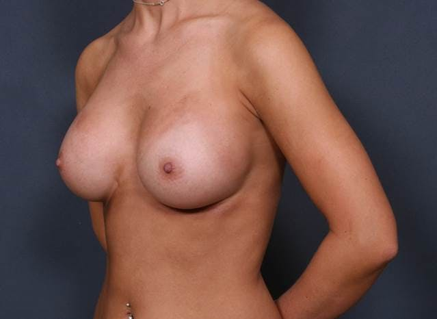 Breast Augmentation Gallery - Patient 42751473 - Image 4
