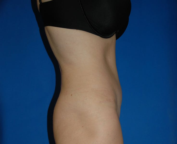 Tummy Tuck Gallery - Patient 42751471 - Image 6