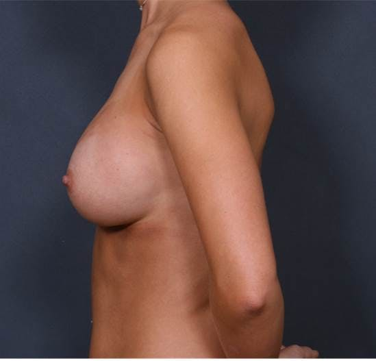 Breast Augmentation Gallery - Patient 42751473 - Image 6