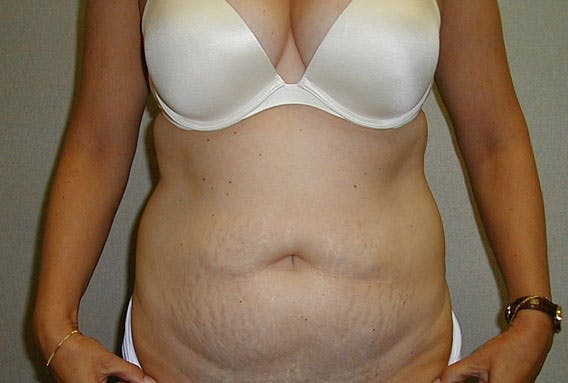 Tummy Tuck Gallery - Patient 42751482 - Image 1