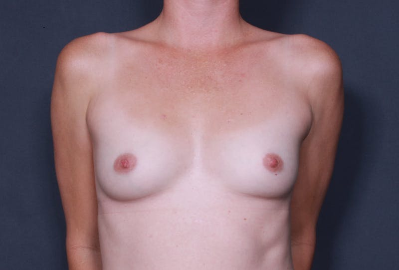 Breast Augmentation Gallery - Patient 42751483 - Image 1