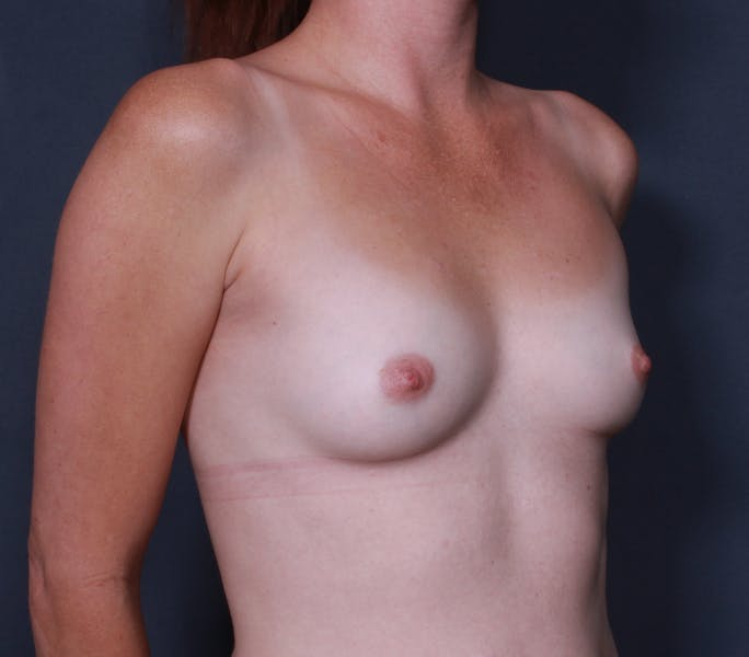 Breast Augmentation Gallery - Patient 42751483 - Image 3