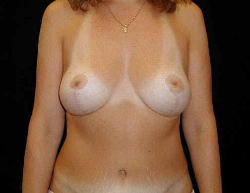 Tummy Tuck Gallery - Patient 42751482 - Image 2