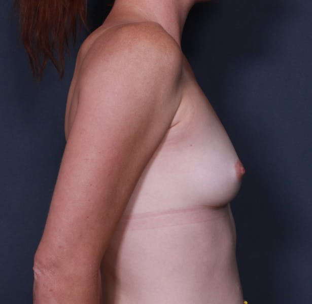 Breast Augmentation Gallery - Patient 42751483 - Image 5