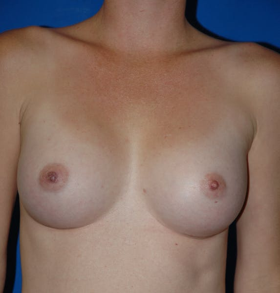 Breast Augmentation Gallery - Patient 42751483 - Image 2