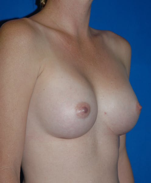Breast Augmentation Gallery - Patient 42751483 - Image 4