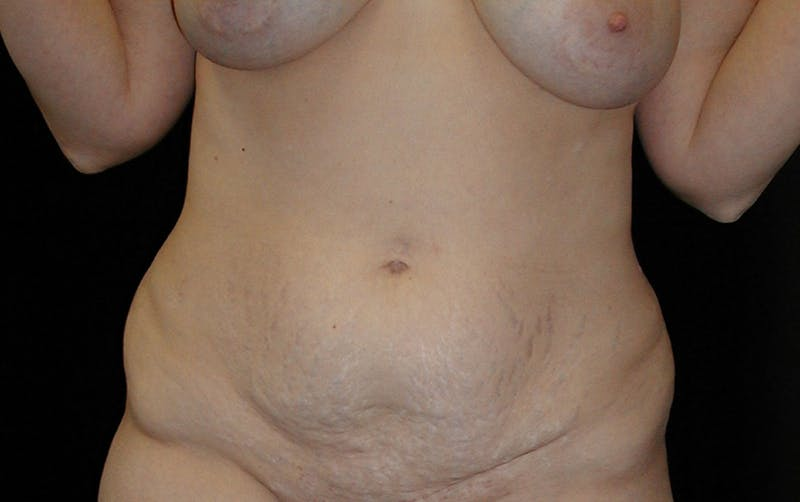 Tummy Tuck Gallery - Patient 42751484 - Image 1