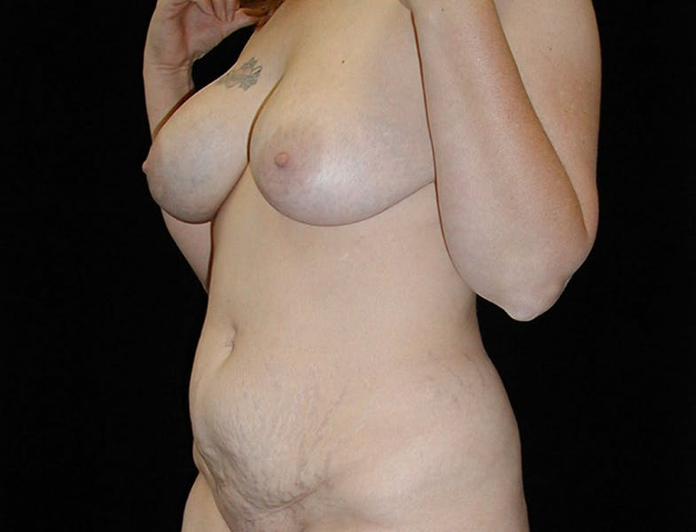 Tummy Tuck Gallery - Patient 42751484 - Image 3