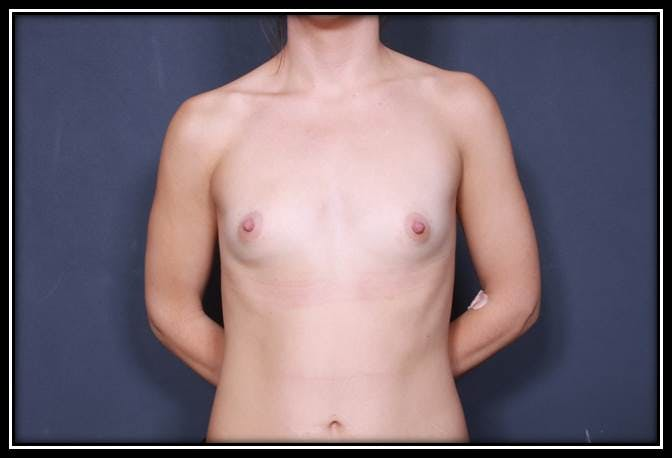 Breast Augmentation Gallery - Patient 42751485 - Image 1