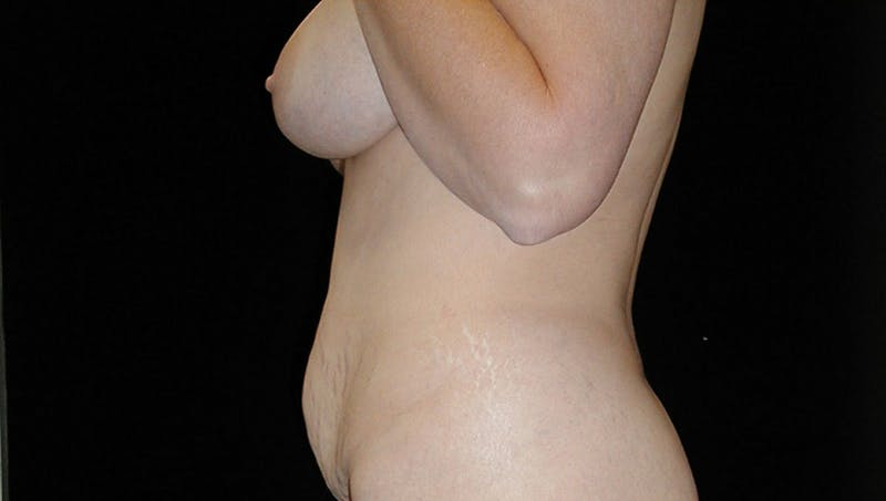 Tummy Tuck Gallery - Patient 42751484 - Image 5