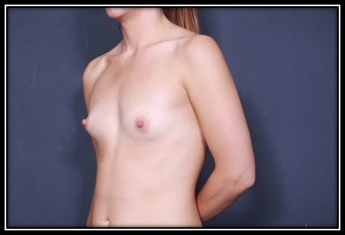 Breast Augmentation Gallery - Patient 42751485 - Image 3
