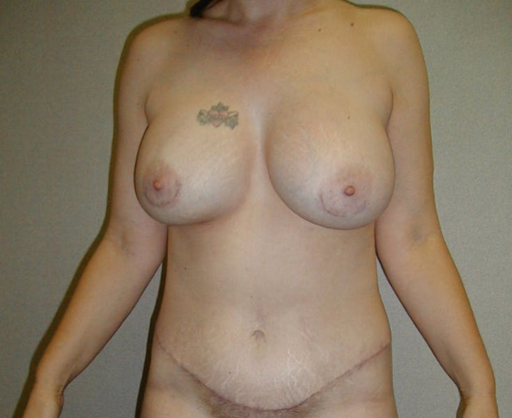 Tummy Tuck Gallery - Patient 42751484 - Image 2