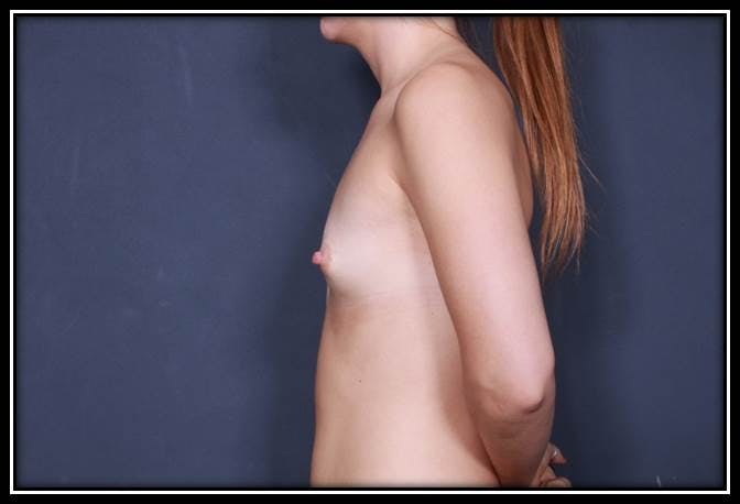 Breast Augmentation Gallery - Patient 42751485 - Image 5