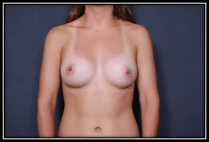 Breast Augmentation Gallery - Patient 42751485 - Image 2