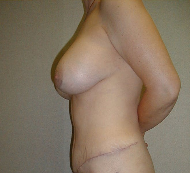Tummy Tuck Gallery - Patient 42751484 - Image 4