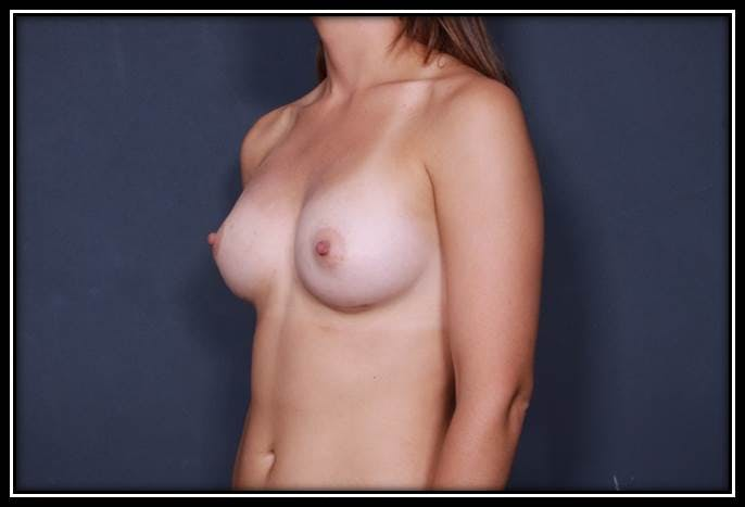Breast Augmentation Gallery - Patient 42751485 - Image 4