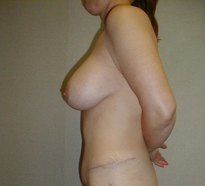 Tummy Tuck Gallery - Patient 42751484 - Image 6