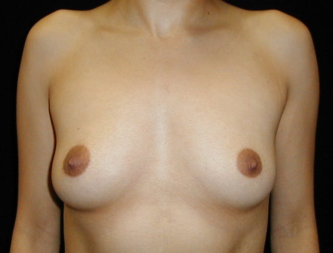 Breast Augmentation Gallery - Patient 42751486 - Image 1